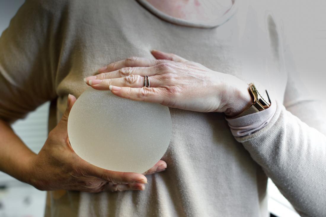 Pojavljuje se rijedak oblik karcinoma zbog implantata u grudima