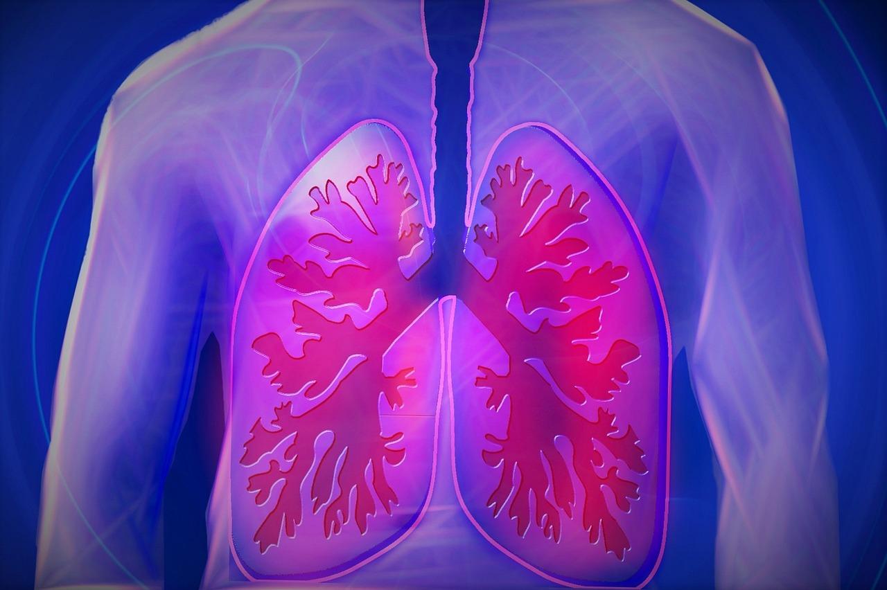 AI može bolje dijagnosticirati rak pluća od ljudi