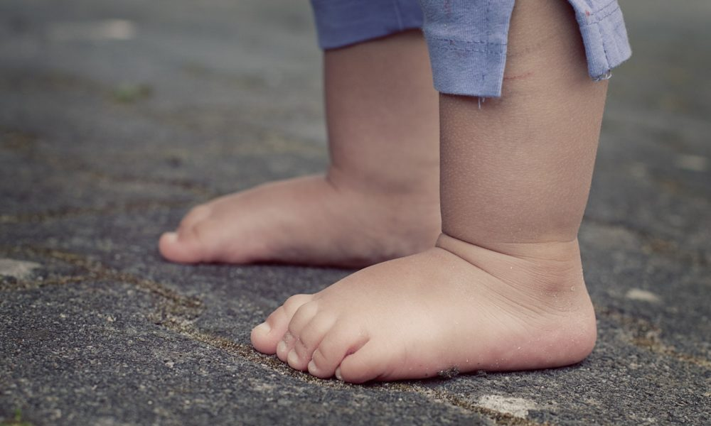 Neurodermatitis se može prvi put pojaviti u odrasloj dobi