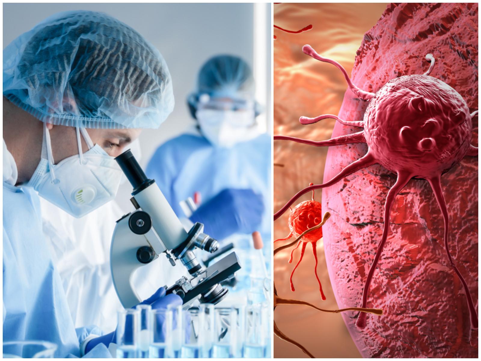 VELIKI USPJEH ZNANSTVENIKA: Uz pomoć 'trojanskog konja' ubijaju stanice raka: 'Radi kao kemoterapija, ali bez nuspojava'