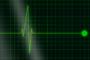 BUDUĆNOST JE STIGLA: Radar otkriva prijeti li vam moždani ili srčani udar, a može i predvidjeti smrt, i to – četiri dana ranije…